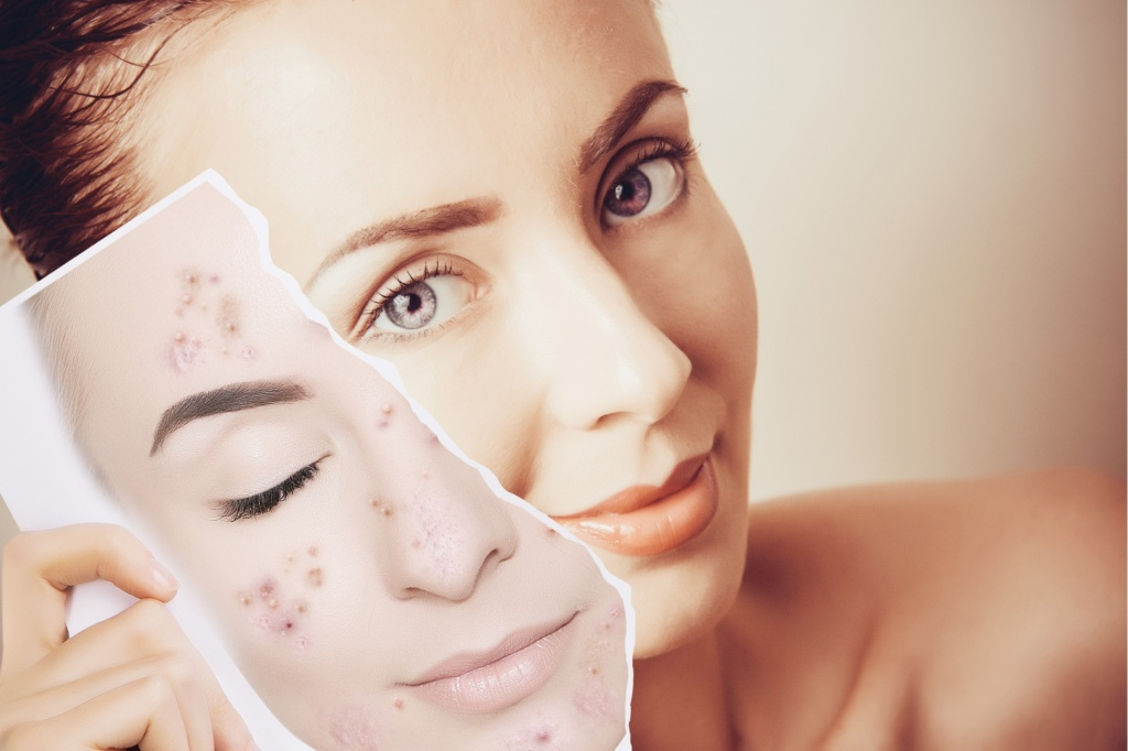 laser-acne-therapy-min.jpg